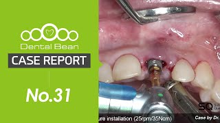 (ENG) Upper anterior immediate implant placement \u0026 loading with SQ fixture