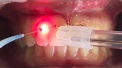 Gummy smile & Laser