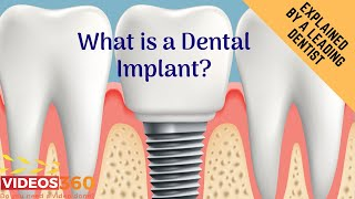 Now Trending - Dental Implants by Dr. Ramsin Davoud