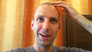 Day 80 Hair Regrowth Experiment with Rogaine Minoxidil 5%