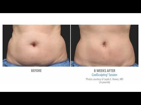 CoolSculpting Before & After - Pulse Light Clinic
