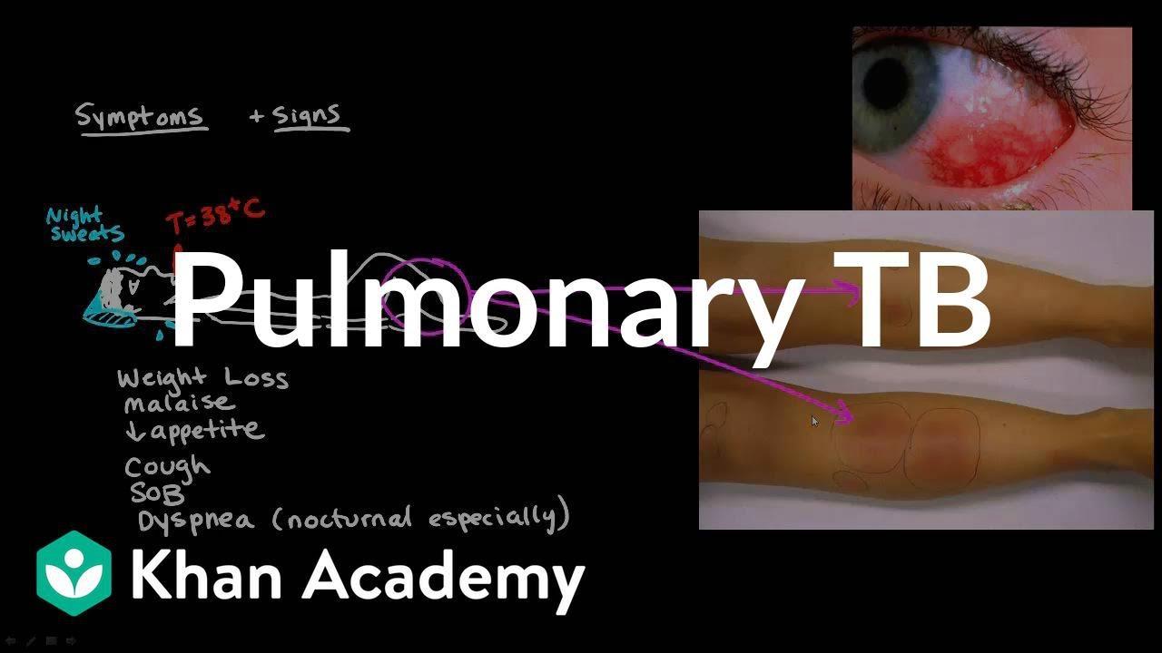 Pulmonary TB (video) | Tuberculosis | Khan Academy