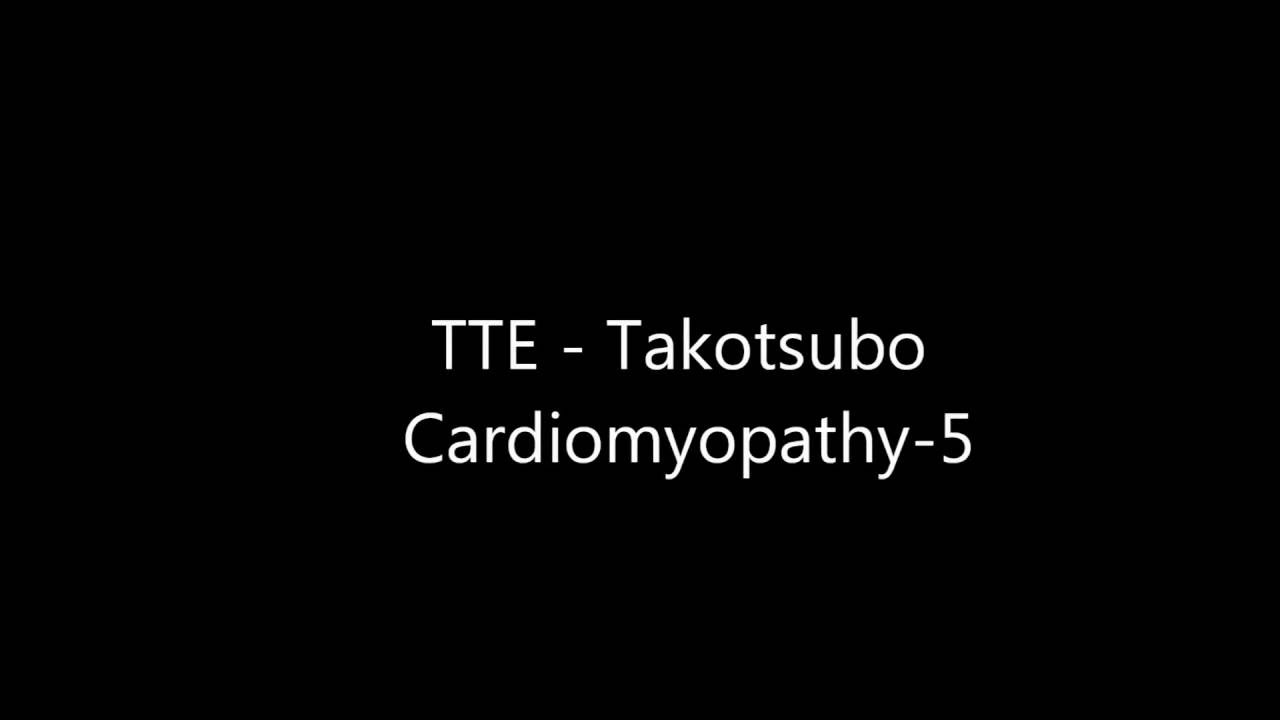report on takotsubo cardiomyopathy Takostsubo (stress) cardiomyopathy (tc) is a clinical syndrome featuring transient left ventricular dysfunction and wall-motion abnormalities, usually following emotional or physical stress the diagnosis of tc depends on fulfillment of multiple clinical criteria although the pathogenesis has not been firmly established, myocardial.