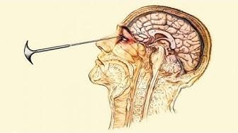 LOBOTOMIA: storia di come si curavano nel passato i mal di testa!