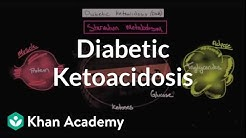 hqdefault - Acute Complications Of Diabetes Mellitus Ppt