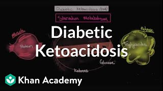 Acute complications of diabetes - Diabetic ketoacidosis   NCLEX-RN   Khan Academy