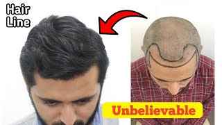 Case Study: Best Hair Line restoration | receding hairline correction