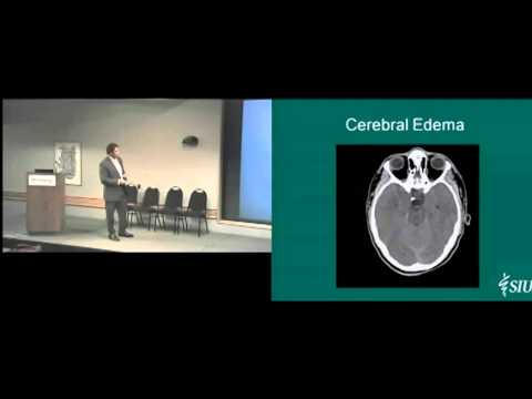 Understanding Traumatic Brain Injury 9-27-12