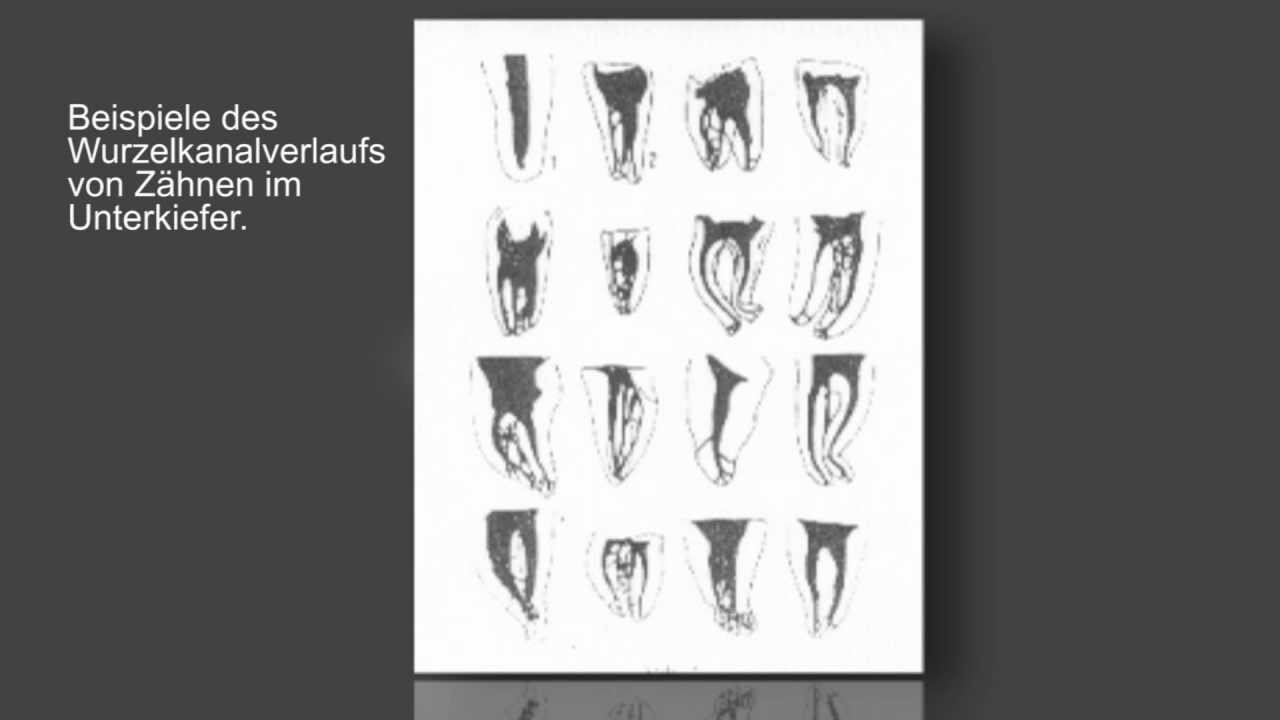 Anatomie des Wurzelkanals - YouTube