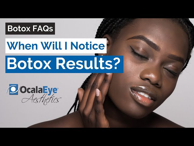 How Long Before I Notice Results from Botox?