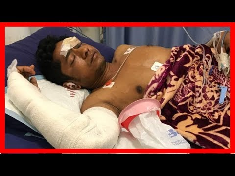Concern for life of rohingya refugee injured in nauru motorbike crash 2017