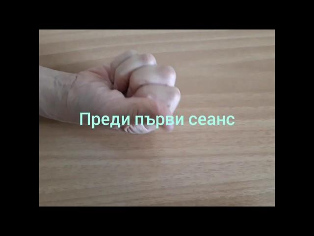 Стенозиращ тендовагинит 3