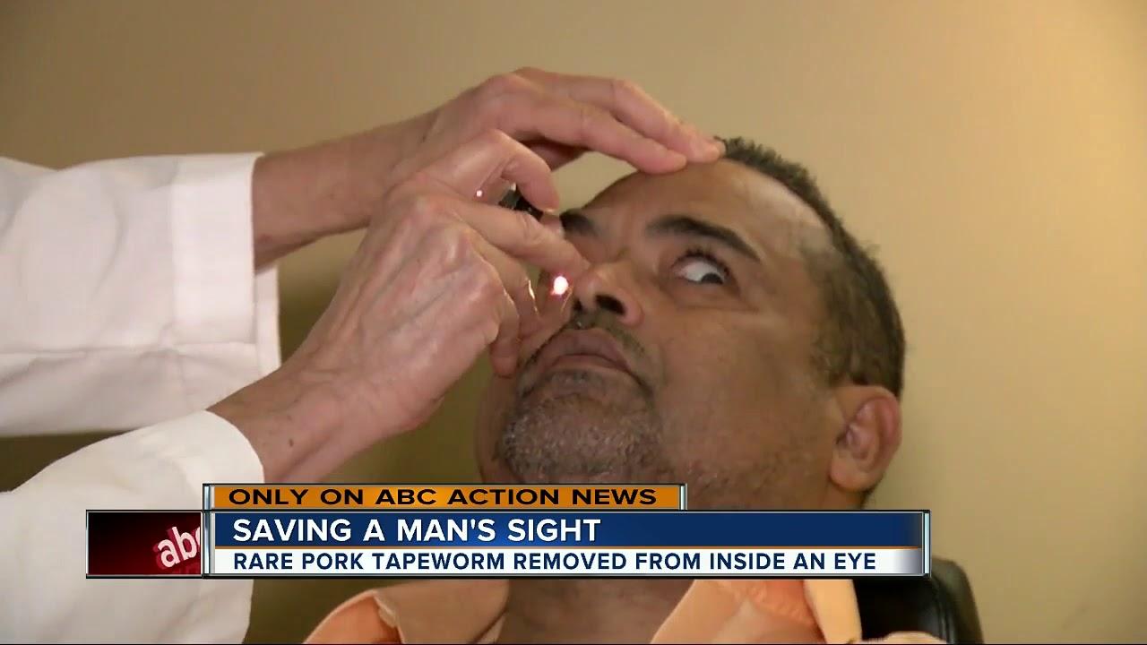Exclusive: Brain-eating worm grows in Florida man's eye