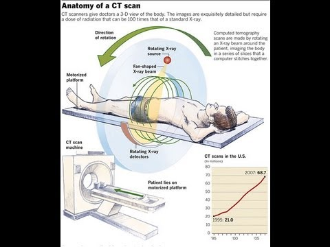 How CT Scan Machine Works