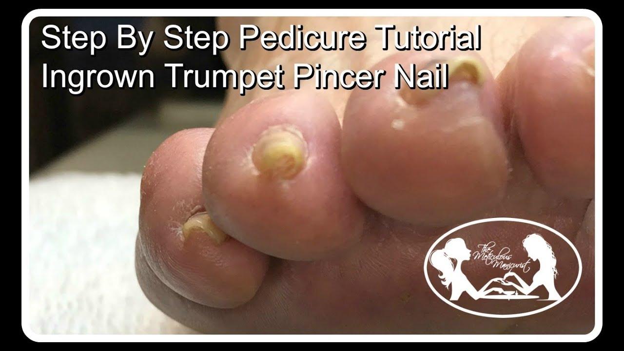 Step By Step Pedicure Tutorial Ingrown Trumpet Pincer Toenail