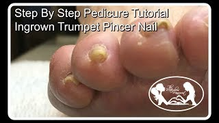 👣Step by Step Pedicure Tutorial Ingrown Trumpet Pincer Toenail 👣✔️