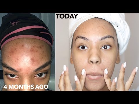 How to Use a Derma Roller to get rid of Acne Scars, Dark spot, Hyperpigmenation