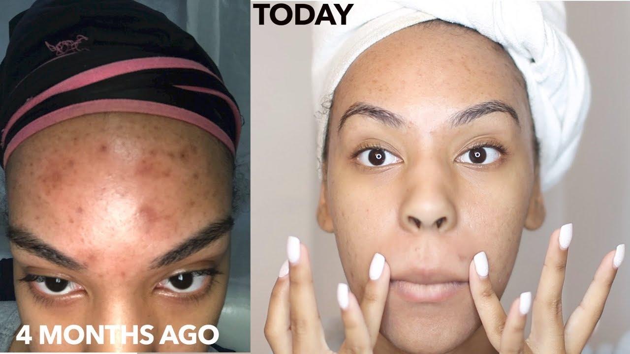 skin roller acne