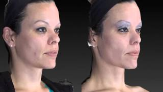 Rhinoplasty 3D Before and After-20