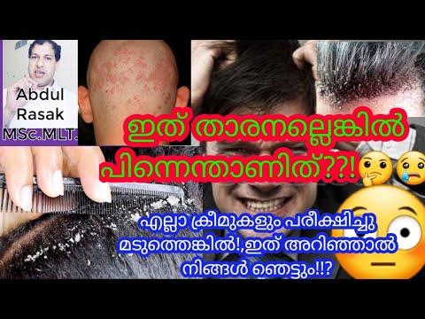 easy-english-malayalam,-health-tips,-സൂക്ഷിച്ചില്ലെങ്കിൽ-ഒരു-മുടി-പോലും-തലയിൽ-കാണില്ല,-dandruff