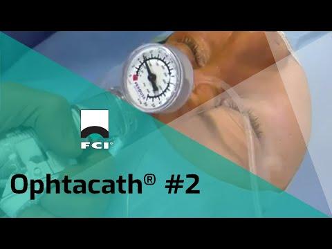 Vignette Vidéo | Ophtacath®