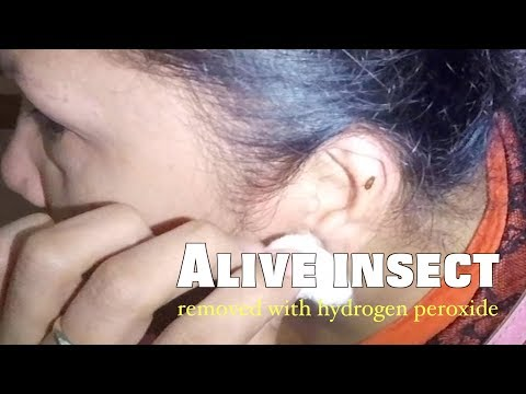 Alive Insect Stuck Deep In the Ear Removed with Hydrogen Peroxide