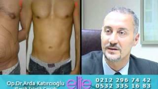 Liposuction Yağ Aldırma Op.Dr.Arda Katırcıoğlu