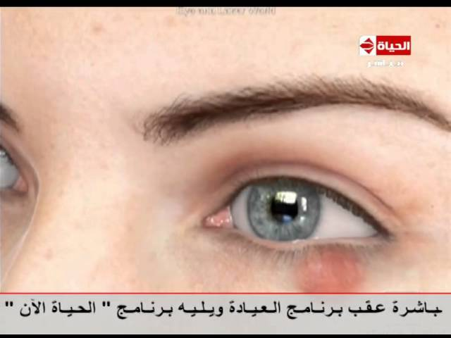 العيادة د إيهاب سعد فيديو يوضح كيف نعالج الكيس الدهني في العين دون اللجوء لجراحة The Clinic Youtube