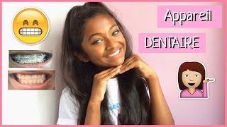 ♡ Appareil Dentaire - Mon expérience