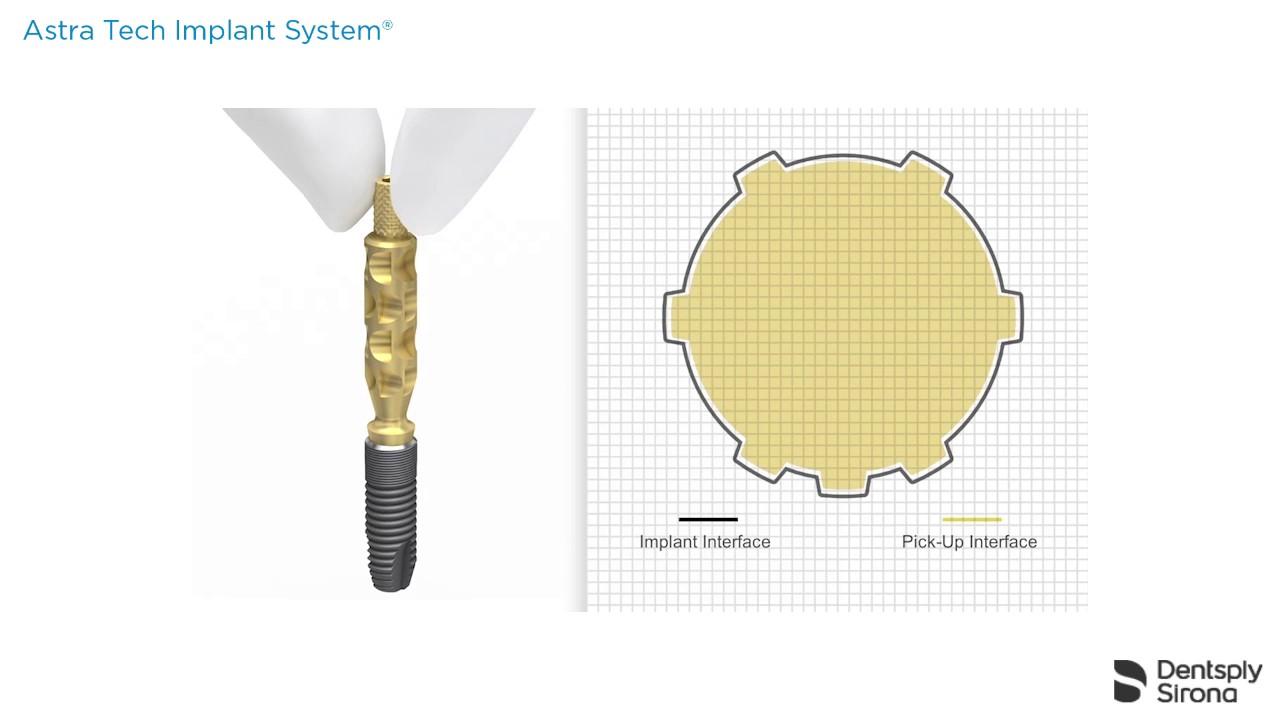 Implant pick up design ev impression taking procedure dentsply implant pick up design ev impression taking procedure dentsply sirona malvernweather Gallery
