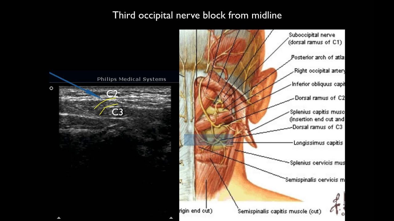 selective nerve root block vs epidural steroid injection