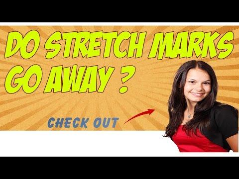 Do Stretch Marks Go Away – Try Revitol Stretch Mark Removal Cream!