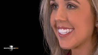 Influencer Gets Smile Makeover w/Whitest Teeth Possible - Must See - By Brighter Image Lab