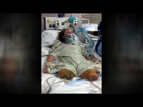 Drs. Exclusive - I Survived Being Run over By a Train