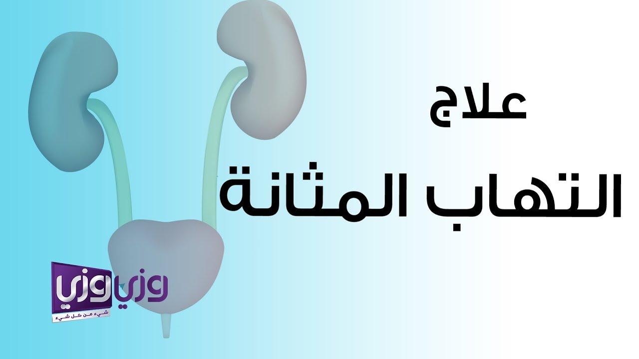 كراج صنبور يتردد اسباب التهاب المثانة عند النساء Dsvdedommel Com