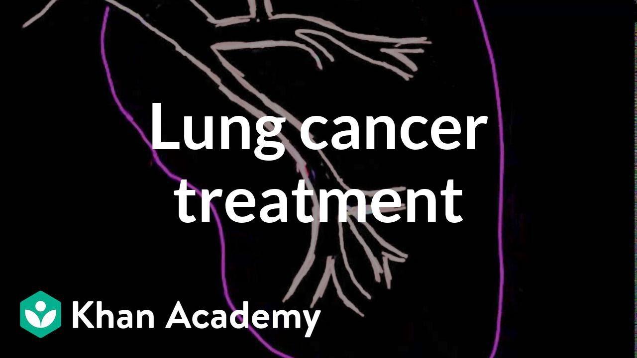 Lung cancer treatment (video) | Lung cancer | Khan Academy