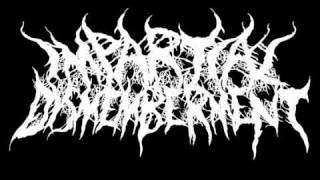 Impartial Dismemberment-The Remains of a Man(Self recorded demo version)