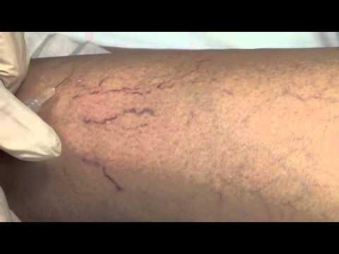 saline injections for spider veins
