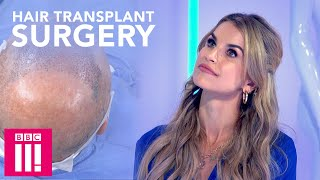 Would You Have Hair Transplant Surgery If You Watched It Live? | Plastic Surgery Undressed