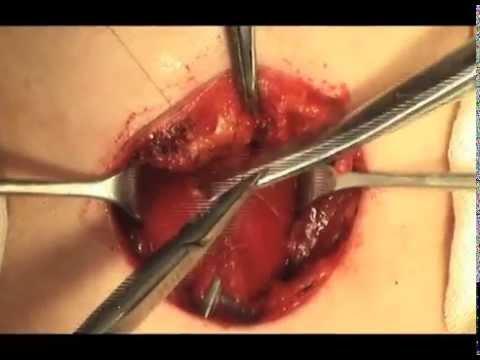 Нетоксический зоб щитовидной железы: лечение, причины