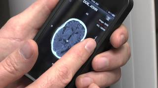 Smartphone Technology and Telemedicine - Mayo Clinic