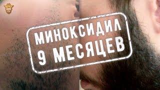 видео Форум о бороде миноксидил
