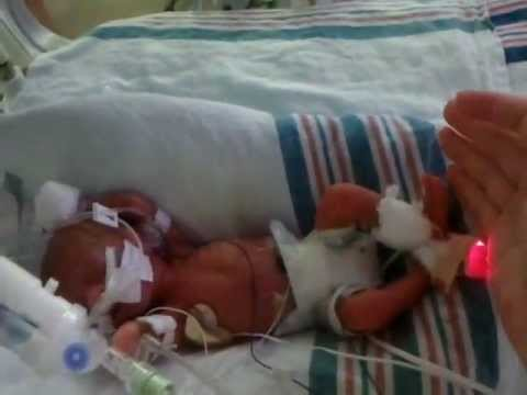 Our 25 Week One Lb 6 Ounce Micro Preemie Success Story