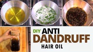 Powerful Anti Dandruff Hair Oil Preparation  - Treat Dandruff at Home
