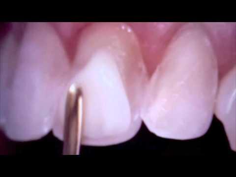 teeth-bonding---teeth-bonding-for-a-smile-makeover