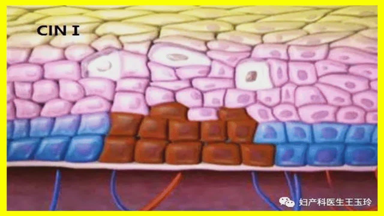 治療宮頸癌前病變。守住宮頸最后一道防線 - YouTube