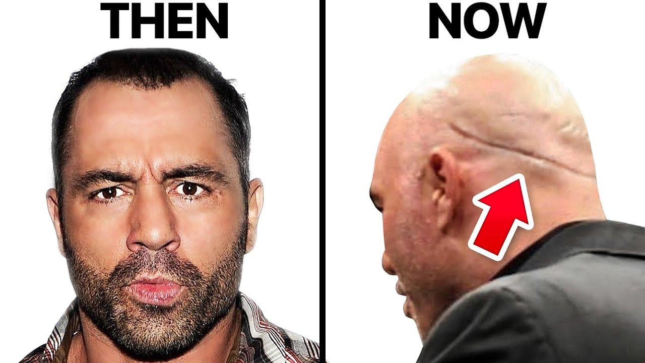 Surgeon Reacts to JOE ROGAN's Hair Transplant