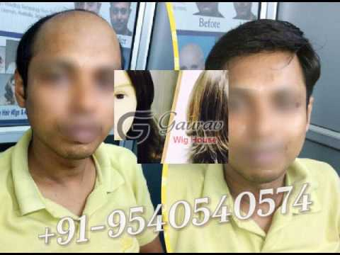 Hair weaving for men in delhi 9540540574 cost of hair weaving hair weaving for men in delhi 9540540574 cost of hair weaving pmusecretfo Gallery