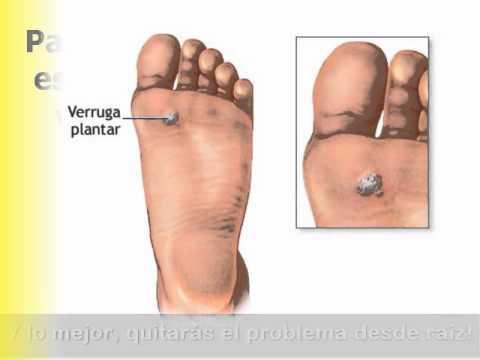 El tratamiento de las uñas contra la psoriasis de las uñas