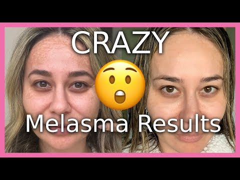 CRAZY Before & After Melasma Results - These Products Work!
